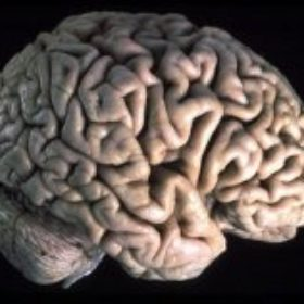 Il lato nascosto del cervello