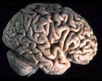 Questione di cervello